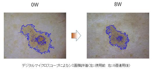 ヘパリン類似物質とプラセンタの併用でシミが小さくなる